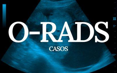 O-RADS – Alguns Casos