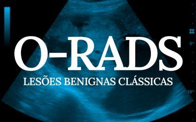 O-RADS – Lesões Benignas Clássicas